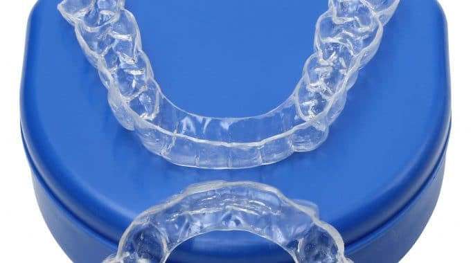 The Importance Of Caring For Your Retainers