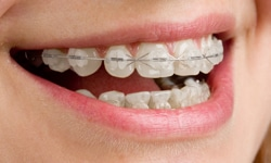 braces Types of Braces clear - Queens NY Orthodontist for Invisalign and Clear Braces