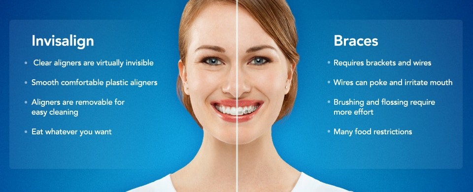 invisalign-slider invisalign Invisalign ® invisalign slider - Queens NY Orthodontist for Invisalign and Clear Braces