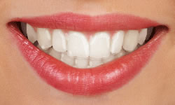 invisalign clear aligner   Braces and Smiles   Queens NY Best Orthodontist for Invisalign and Clear Braces   Affordable Cost   Reviews   Insurance braces Types of Braces invisalign - Queens NY Orthodontist for Invisalign and Clear Braces