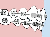 Orthodontic Emergency Care loose bracket - Queens NY Orthodontist for Invisalign and Clear Braces