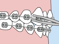 Orthodontic Emergency Care loose wire - Queens NY Orthodontist for Invisalign and Clear Braces