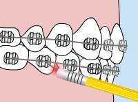 Orthodontic Emergency Care poking wire - Queens NY Orthodontist for Invisalign and Clear Braces