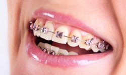 metal braces | Braces and Smiles | Queens NY Best Orthodontist for Invisalign and Clear Braces | Affordable Cost | Reviews | Insurance braces Types of Braces traditional metal - Queens NY Orthodontist for Invisalign and Clear Braces