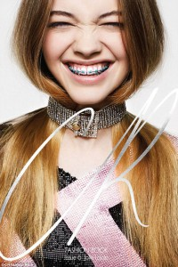 Color Braces Fashion Statement | Braces And Smiles | Queens NY Best Orthodontist For Invisalign And Clear Braces | Affordable Cost | Reviews | Insurance