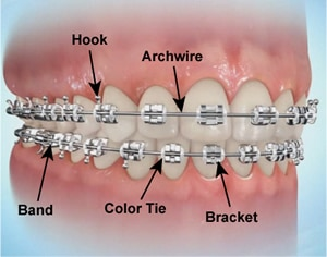 Braces and Smiles - Orthodontic Emergency 1  Orthodontic Emergencies – What To Do Braces and Smiles Orthodontic Emergency 1 - Queens NY Orthodontist for Invisalign and Clear Braces